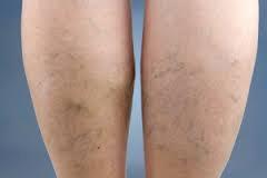 spataderen benen